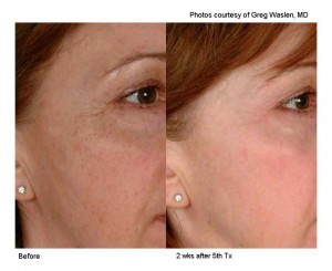 Using 2D therapy, combining Laser Genesis and Limelight (IPL) therapies to improve discoloration of the skin.
