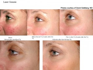 The gold standard Laser Genesis for the treatment of Rosacea and skin redness.