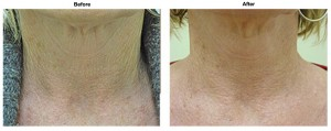 before and after dermastamp - DR 300 DPI